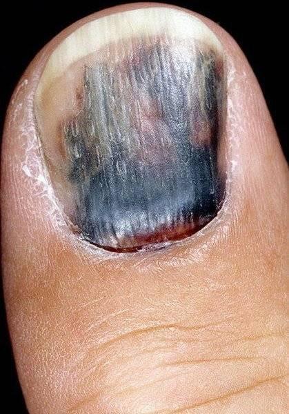 болезни ногтей почернение: