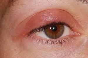 Заболевания глаз и век