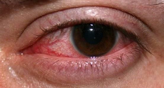 Травма глаза: какие бывают, причины, как оказать первую помощь и как лечить