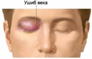 Как вывести синяк под глазом после травм