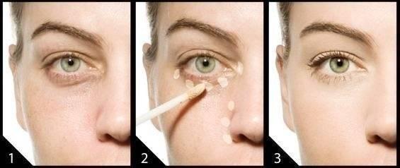 Чем замазать и как замаскировать синяки под глазами