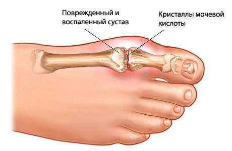 Болят пальцы на ногах причины
