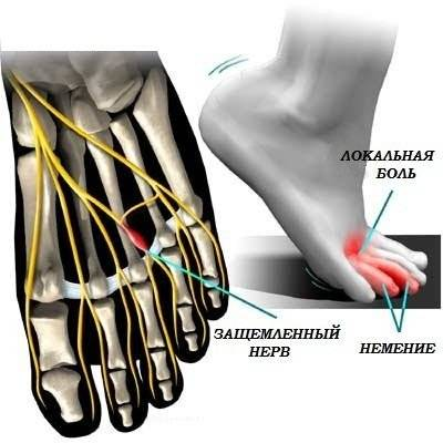При каких заболеваниях болят пальцы на ногах о почему это происходит