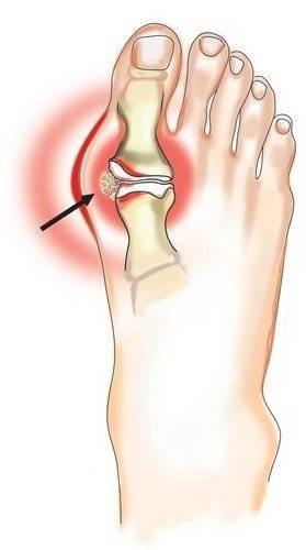 Болезнь артрит лечение