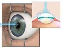 Лазерная операция на глаза – преимущества