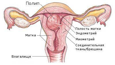 Полип цервикального канала при беременности – виды, симптомы, диагностика и лечение