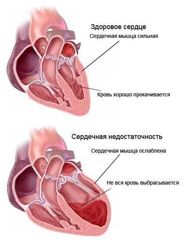 Перекись водорода от боли в горле рецепт