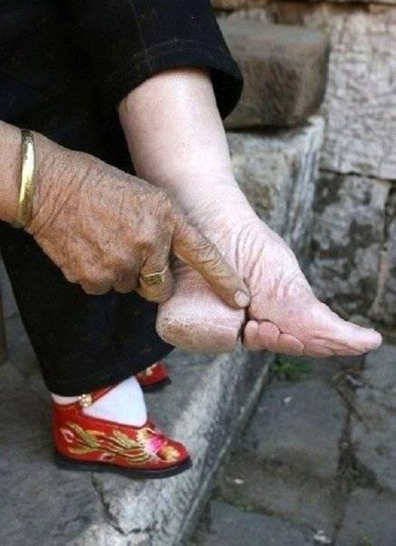 очень полные ноги как похудеть