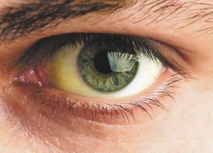 Жёлтые глаза: причины изменений