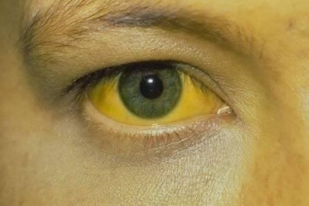 Почему глаза жёлтые длительное время