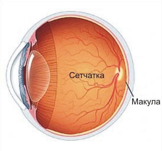 Симптомы заболевания сетчатки глаза