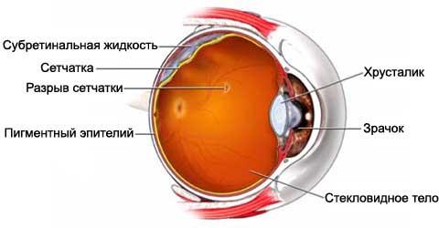 Разрыв сетчатки глаза – причины и симптомы