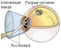 Лечение сетчатки глаза – консервативное, лазерное или хирургическое?