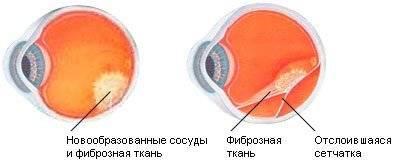 Отслоение сетчатки глаза – причины