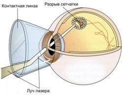 Отслоение сетчатки глаза – лечение: хирургическое и лазерное