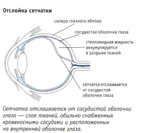 Отслоение сетчатки глаза – симптомы