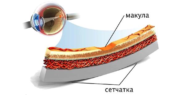 Дистрофия сетчатки глаза – причины