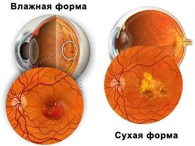 Дистрофия сетчатки глаза – виды