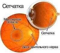Макулодистрофия сетчатки глаза – причины и симптомы