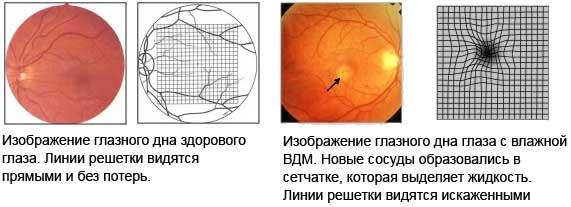 Мужские оправы для очков для зрения