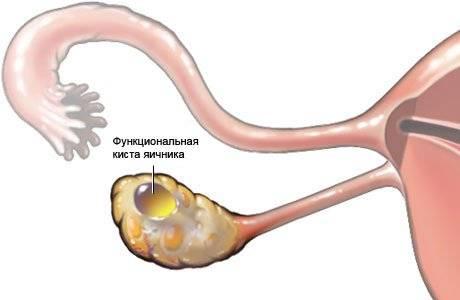 Что такое киста яичника – основные виды