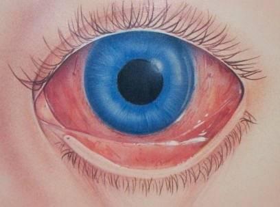 Почему у ребенка красные глаза: причины состояния