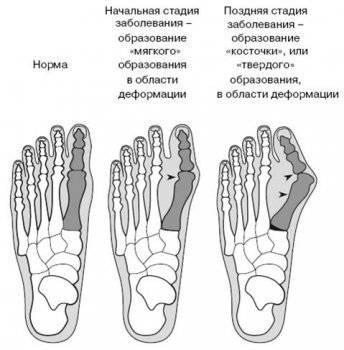 Шпора на ступне симптомы и лечение