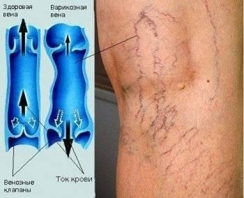 Операция на вены на ногах полный перечень методов