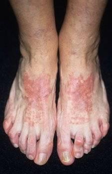 кожные заболевания на ногах фото