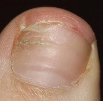 Внутренние препараты при грибке ногтей