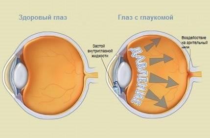 Глаукома глаза: причины, симптомы, виды и формы