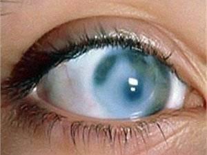 Бельмо на глазу: что это, причины, симптомы и лечение