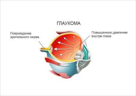 Первичная открытоугольная глаукома - Заболевания глаз ...