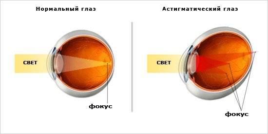 Сколько стоит операция на коррекцию зрения в уфе