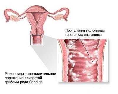 Опасна ли молочница при беременности