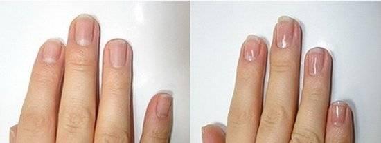 Почему ваши ногти расслаиваются и что делать?