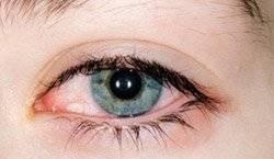 Аллергия на глазах: причины