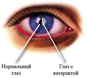 Операция по замене хрусталика глаза – противопоказания