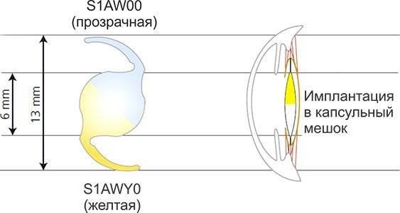 Искусственный хрусталик глаза – выбор имплантата