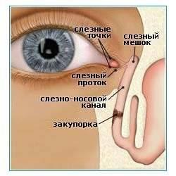 Как выглядит гной в глазах