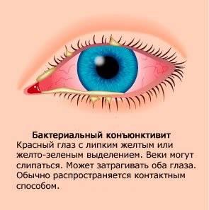 Почему гноятся глаза у взрослых?