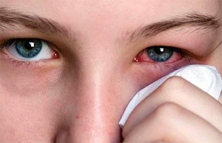 У ребёнка покраснение под глазами, что делать?
