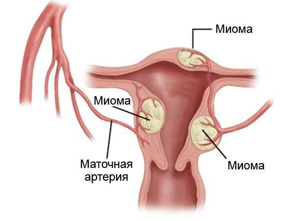 Доброкачественная и злокачественная опухоль матки