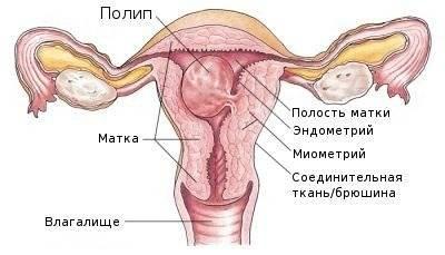 Когда проводится гистероскопия матки?