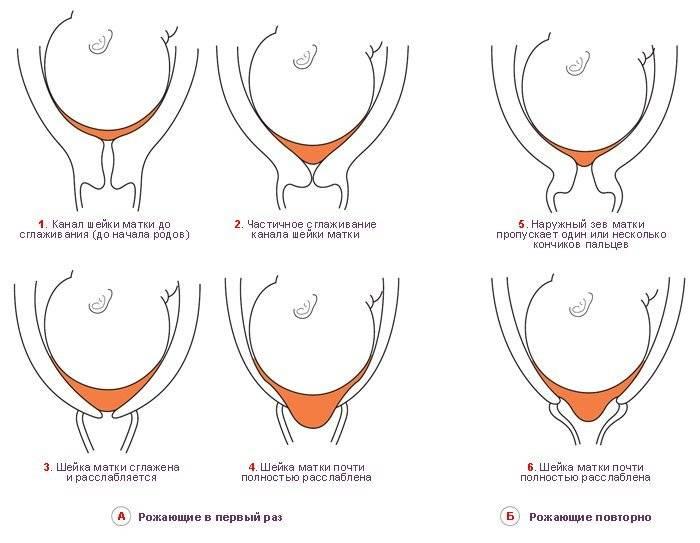 Как по матке определить беременность самой