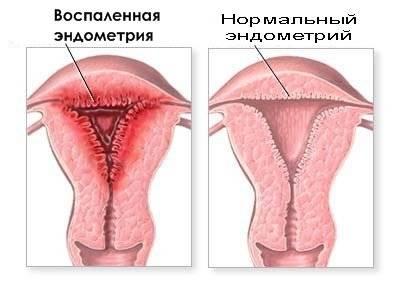 Воспаление матки симптомы