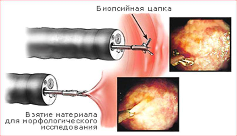 Биопсия при эрозии шейки матки