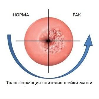 Биопсия шейки матки. Подготовка к процедуре