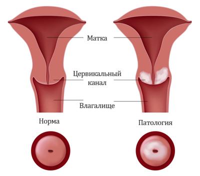 Эрозия шейки матки причины
