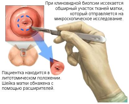 Диагностические меры